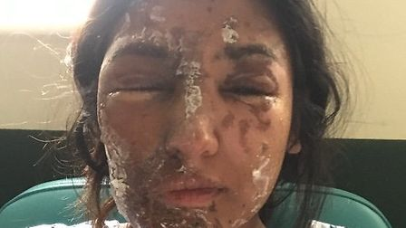 Resham Khan in the days after the acid attack PICTURE: Resham Khan/GoFundMe