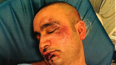 Detectives are appealing for information following a violent attack in Woodford.