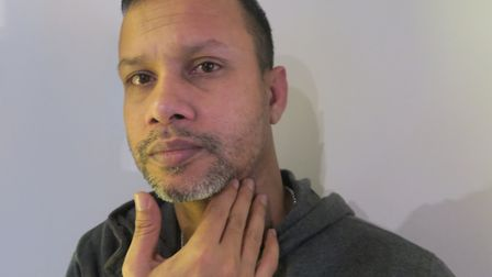 Acid attack victim Jabed Hussain showing scars now healing thanks to wearing his moped safety helmet