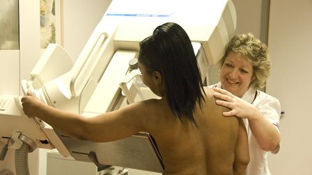 A woman undergoing a routine mammogram to screen for early signs of breast cancer. Picture: Society