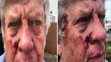 Thieves pinned down John Hart and punched him in the head, while they stole his safe from his home i