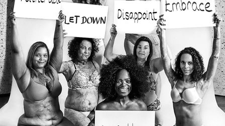 Natalie is pictured holding the placard 'embrace' in the Love Disfigure photo shoot. Picture: Manon