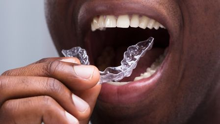 Perfect Smile Spa'�s near-invisible braces could help you improve your smile discreetly and quickly.