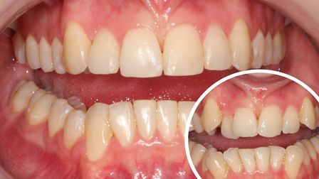 Before braces at Perfect Smile Spa (left), and after braces at Perfect Smile Spa (right). Photo cred