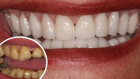 Before porcelain veneers (bottom left) at Perfect Smile Spa and after porcelain veneers. Pictures: P