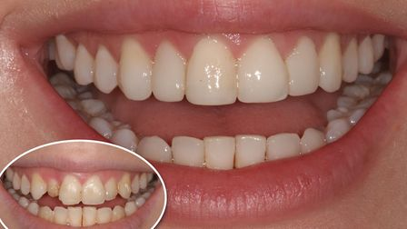 Before composite bonding and veneers (bottom left) at Perfect Smile Spa and after composite bonding