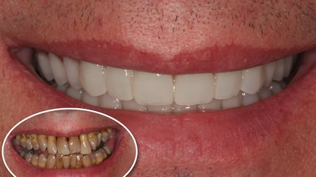 Before cosmetic dentures (bottom left) at Perfect Smile Spa and after cosmetic dentures. Pictures: P