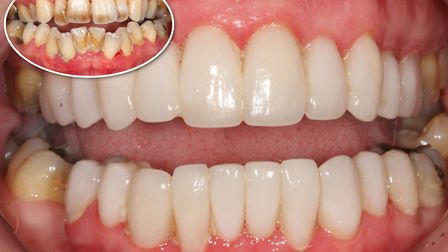 Before gum re-shaping and treatment (top left) at Perfect Smile Spa and after gum re-shaping and tre