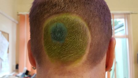 Vikki Daniel had the logo of Sarcoma UK shaved into the back of her head. Picures: Supplied