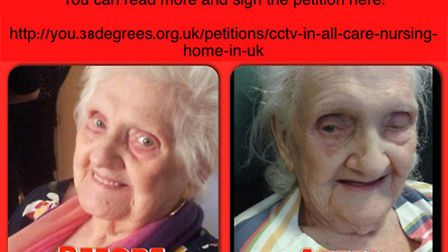 Bridget Rees, before and after she went into the care home.