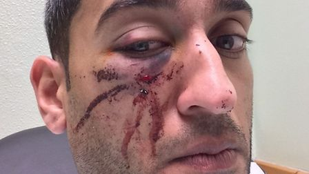 The victim was punched in the head and kicked in the ribs suffering a fractured right cheek bone, a