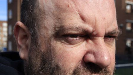 The scars on the side of Derrick Mahoney's faceCaption: Photo National News and Pictures/ Adam Davi
