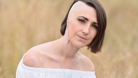 Lowestoft acid attack victim Adele Bellis has called for more regulations to stop people buying noxious liquids. Picture:...