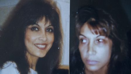 An image of Shireen Jamil in her younger years (left) and another image of injuries she suffered thr