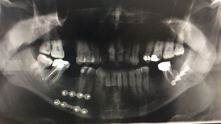 An X-ray of Alan's jaw.