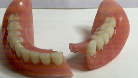 A lower cracked denture. Picture: My Denture Repair