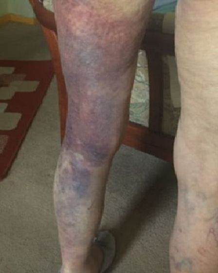 One of the victim's legs is entirely bruised as well as her hip and stomach. In addition she sustain