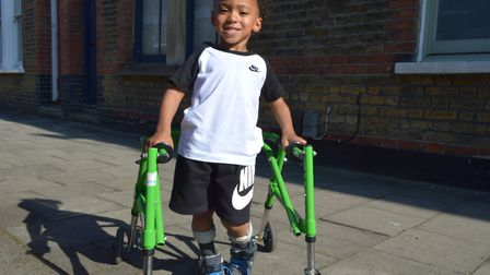 Carter could walk with a life-changing operation. Picture: Polly Hancock