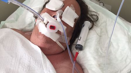 Heather Pyke on life support in a Turkish hospital. Picture: Pyke family