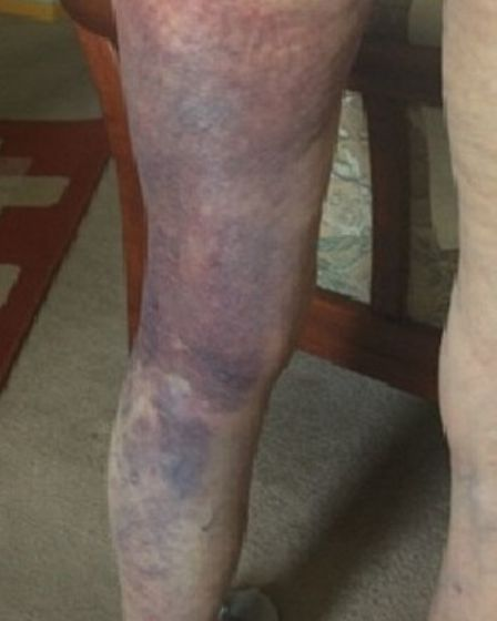 The woman's leg after being dragged down the road.