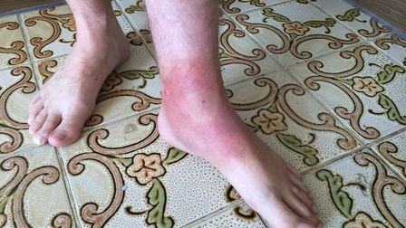 A red 'bullseye' rash appears following a bite from a tick carrying Lyme disease. Picture: Lyme Dise