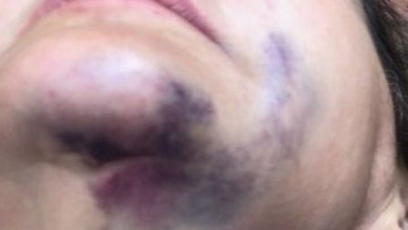The woman was slapped across the face during the violent Primrose Hill attack. Picture: Anonymous