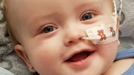 Baby Oscar Crane-Rawlinson, who has endured five operations in just over four weeks. Picture: Courte