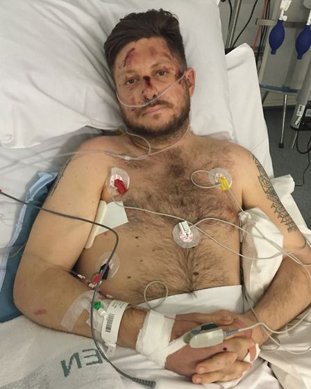 Joe in hospital after his accident.