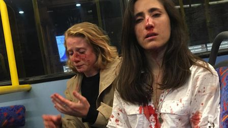Melania Geymonat and her girlfriend after they were both assaulted on the N31 nightbus in Camden in