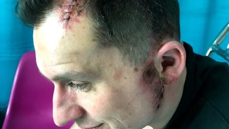 Mark Foster after he and his daughter were hit by a car in East Finchley on February 4 outside Marti