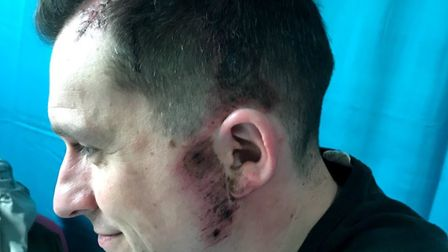 Mark suffered serious injuries when he was hit by a car outside Martin Primary School in February. P