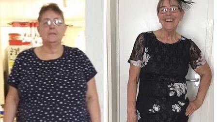 Susan's dramatic weight loss means she no longer suffers from type-2 diabetes.