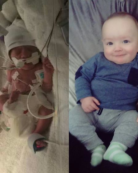 Jaxon Dowling just after his birth (left) and now. Picture: East Coast Community Healthcare/Dowling