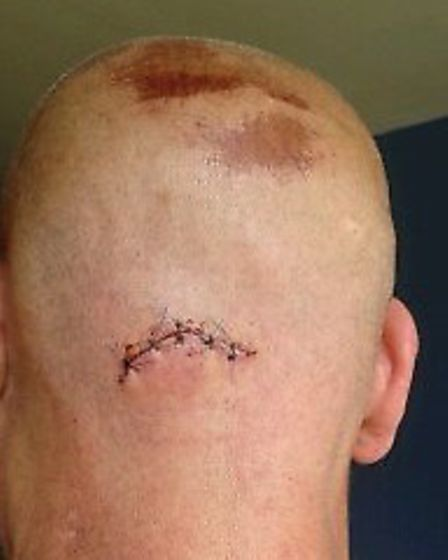 William Baxter was stabbed in the back of his head in the attack