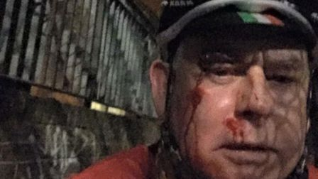 Pete Bettell suffered cuts and bruises after being pushed into the canal (Pic: Facebook)