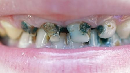 The number of young children with tooth decay has decreased the most in Brent