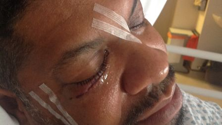 Sharron Wilson heard a 'pop' in his eye socket after the attack in Millers, Caledonian Road. He has