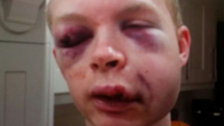 Callum Wade who was attacked in Charterhouse Street.