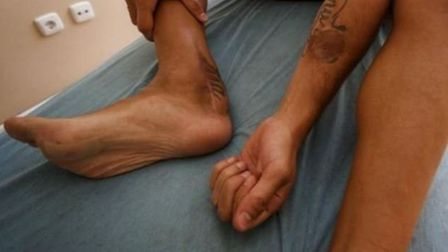 Doctors had to perform a skin graft from Cazorla's arm to his right ankle. Credit Marca