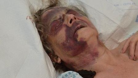 Iris Warner was attacked in her own home