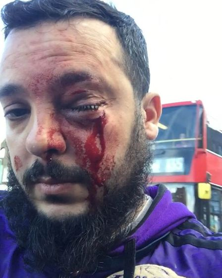 Deliveroo and Uber driver Zakaria Gherab after he was punched in the face while working as a deliver