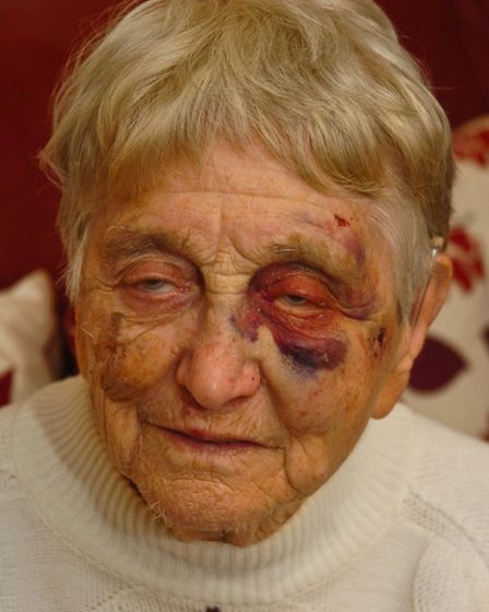 Marian Hearn with bruised face after a fell in Clevedon