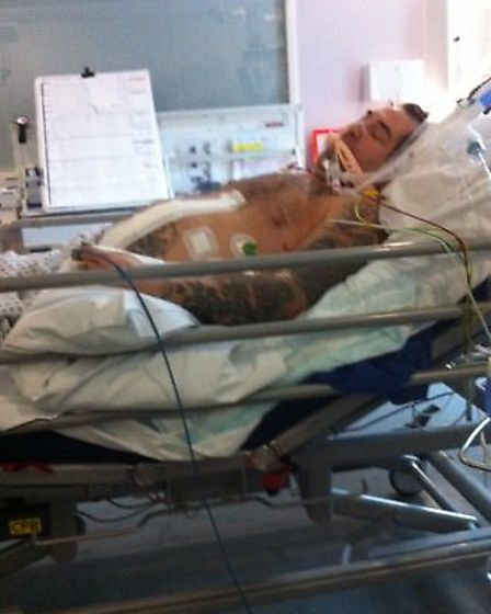 Peter Cox suffered 'life-changing' injuries as a result of the incident.