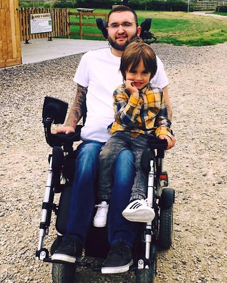 Greg Sumner and his son Alfie, aged five, after the accident.