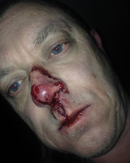 Gary Goodwin straight after the attack.