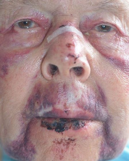 The victim was left with broken nose, a fractured wrist and severe bruising.