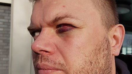 A man was punched to the floor and kicked in the face in an assault on New Year's Day.