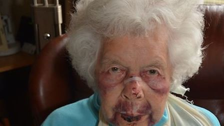 Police have released shocking images of the victim to appeal for information.