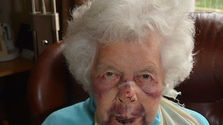 Joan Hollington was injured in January. Picture: Avon and Somerset Constabulary