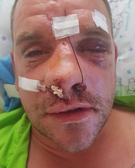 Luke's nose and eye socked were smashed and he suffered a fractured skull and needed 40 stitches in